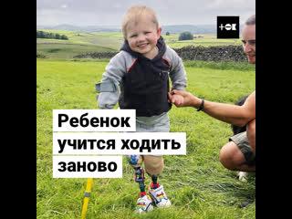 Четырехлетний мальчик делает свои первые шаги на протезах