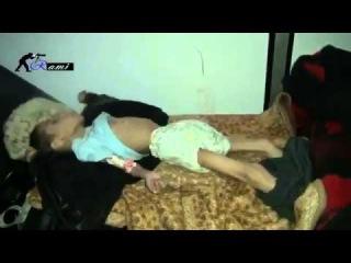 +18 Сирия: смерть 4-х летнего ребенка после борьбы с истощением и голодом. Дамаск