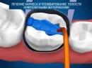 Лечение зубов. Лечение кариеса и пломбирование в Донаре вита