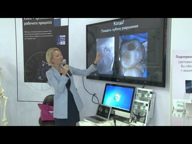 Мастер класс О Мельникова Использование KaVo DIAGNOcam на детском приёме