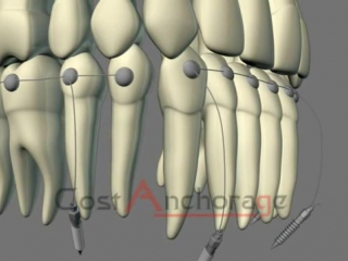 Second class molar and canine key correction. Ортодонтия.