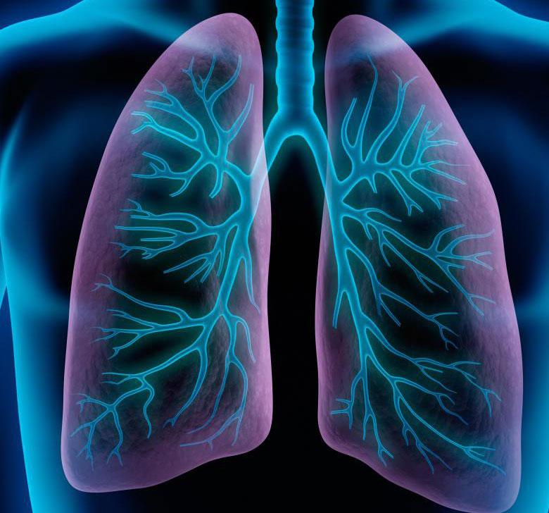 Пневмония - это респираторное заболевание, когда один или оба легких заражаются.