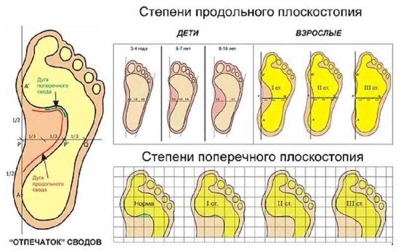 Плюсы ортопедических стелек, изображение №2