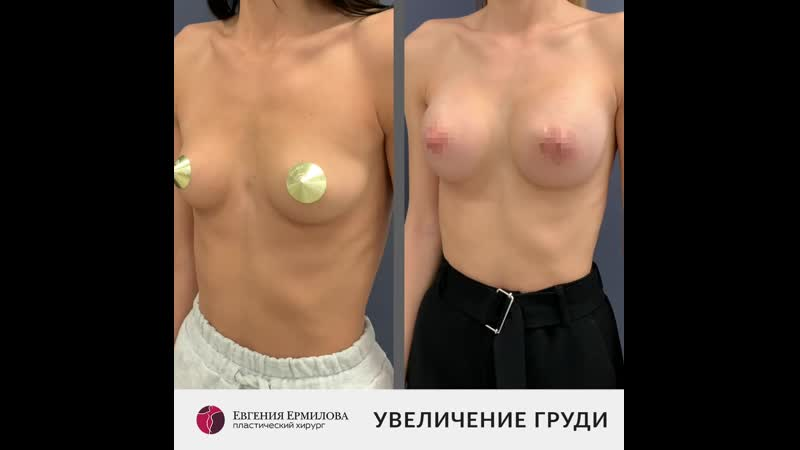 Увеличение груди Пластический хирург Евгения Ермилова