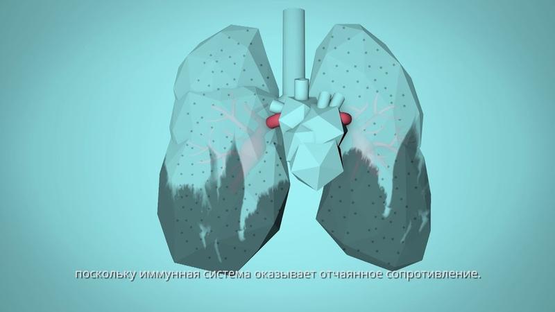 ВОЗ Вдохнем жизнь Как загрязнение воздуха влияет на ваше тело