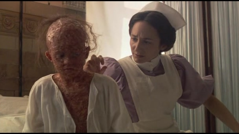Лондонский госпиталь Сезон 1 серия 4