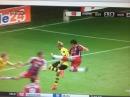 Javi Martinez HORROR KNEE Injury ! Borussia Dortmund vs Bayern Munich   DFL SuperCup 2014